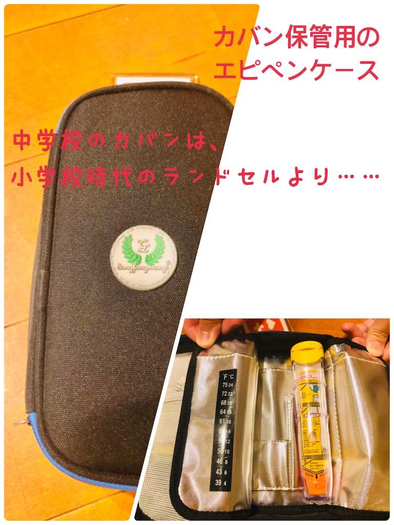 f:id:allergy_nagasakikko:20200626123037j:image
