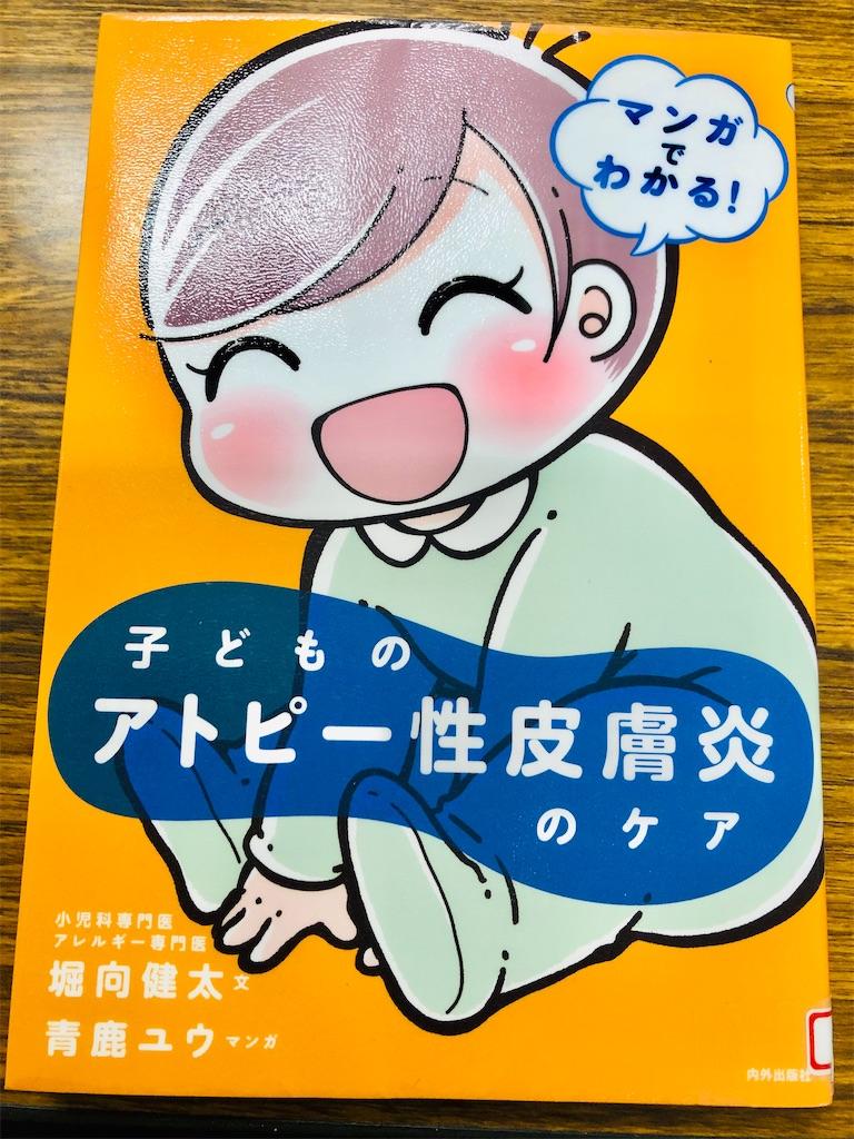 f:id:allergy_nagasakikko:20200703084852j:image