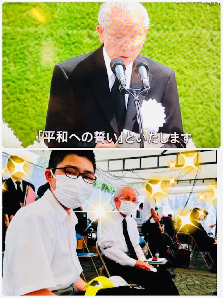 f:id:allergy_nagasakikko:20200809142504j:image