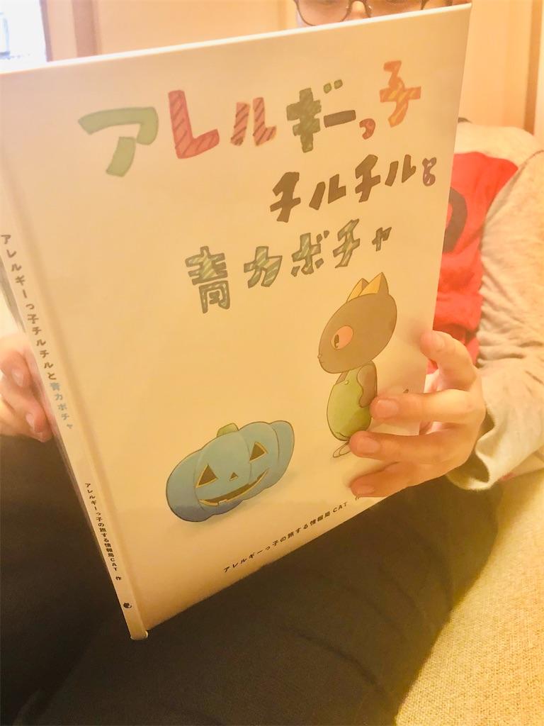f:id:allergy_nagasakikko:20201013211253j:image