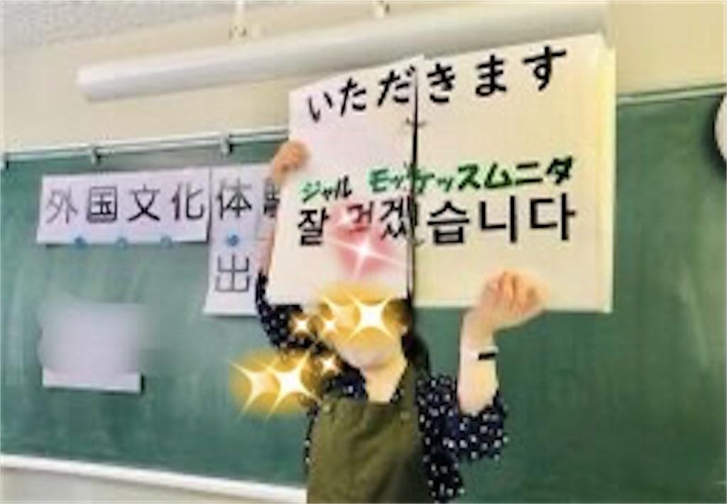 f:id:allergy_nagasakikko:20201104204843j:image