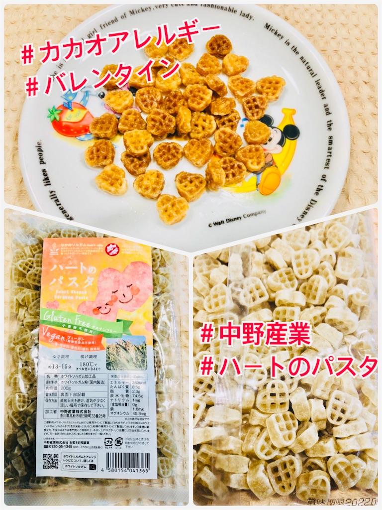 f:id:allergy_nagasakikko:20210214192335j:image
