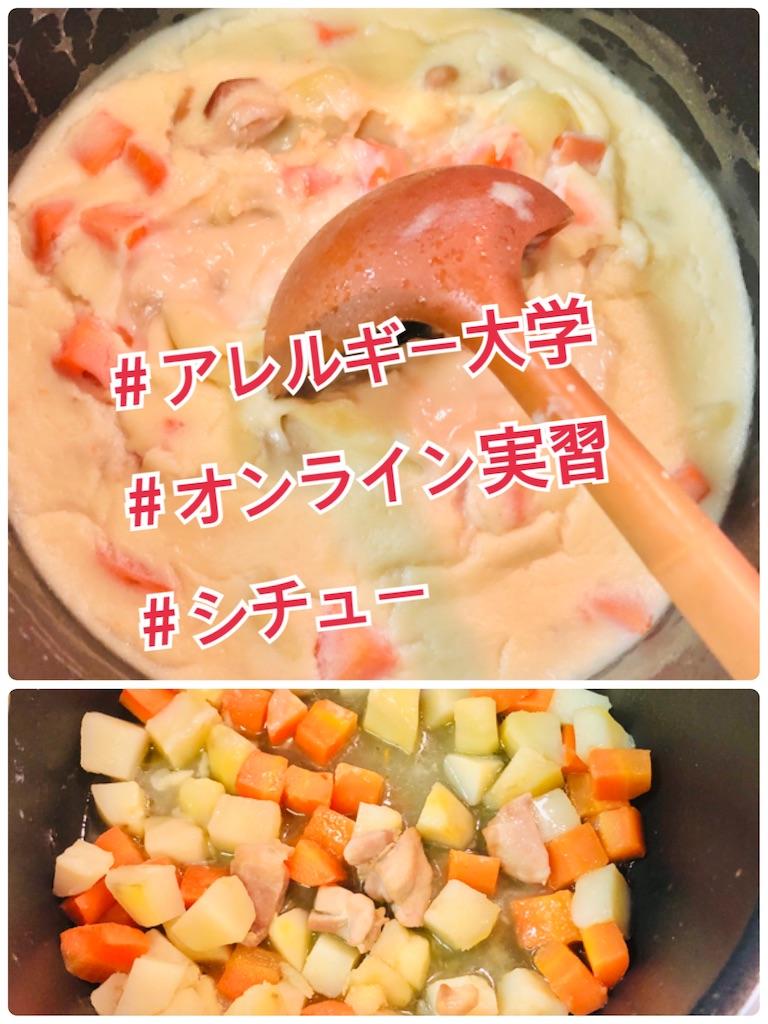 f:id:allergy_nagasakikko:20210313214055j:image