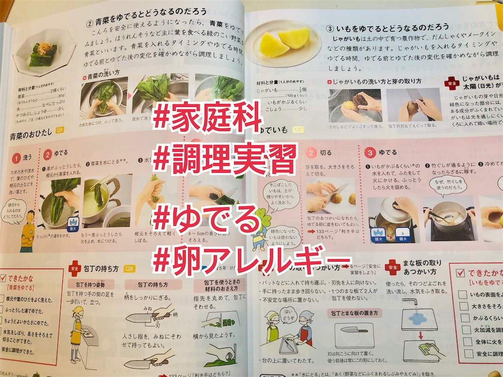 f:id:allergy_nagasakikko:20210315211939j:image