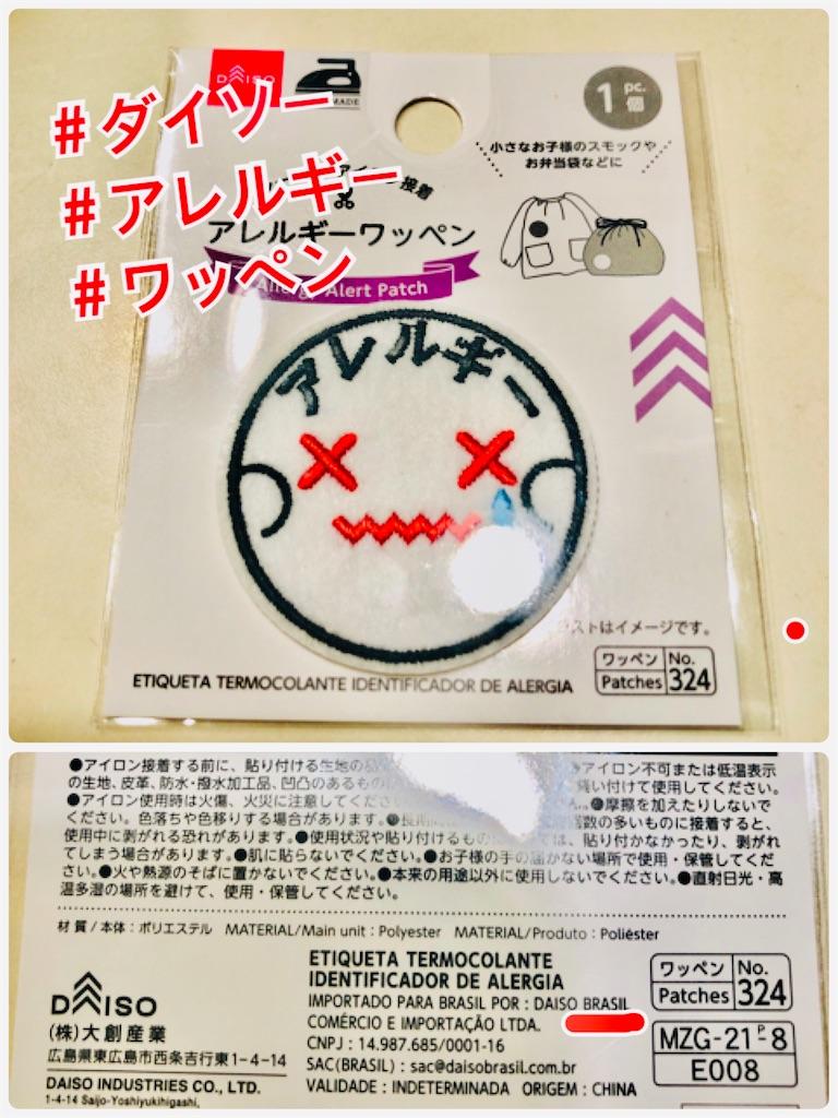 f:id:allergy_nagasakikko:20210328135449j:image