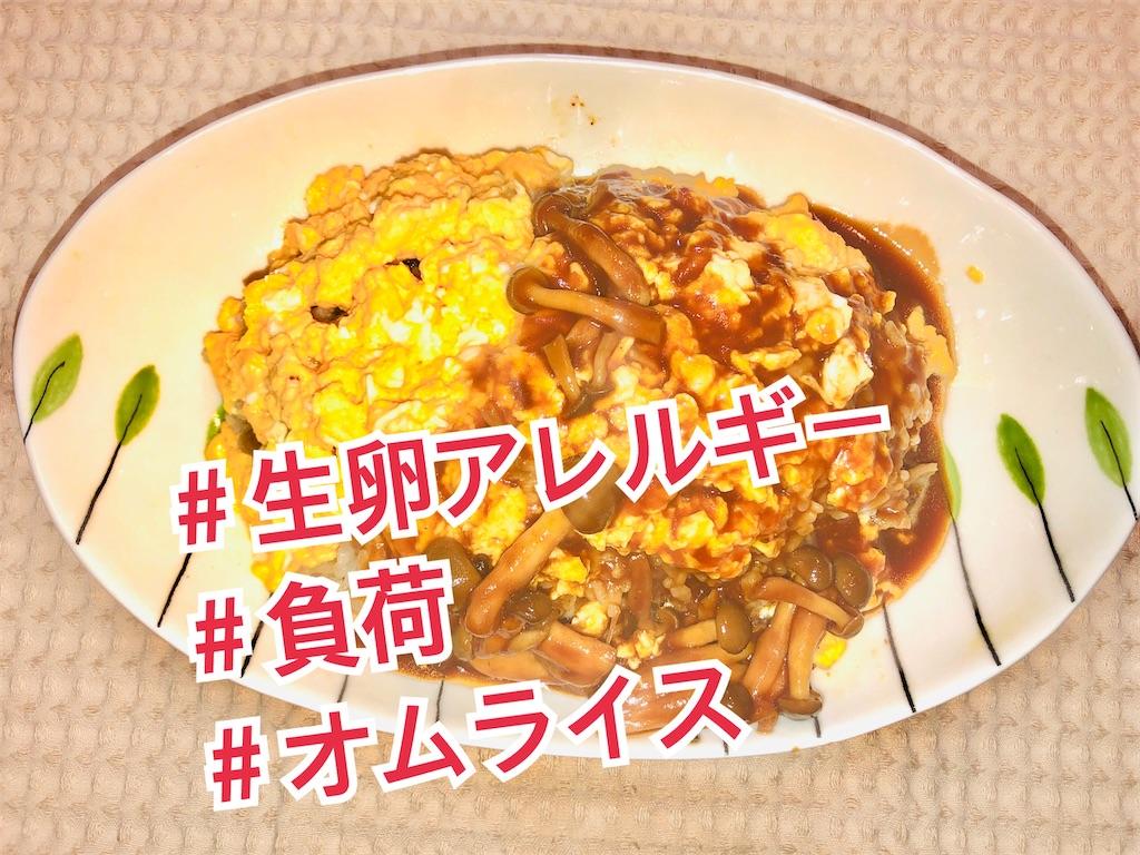 f:id:allergy_nagasakikko:20210425124741j:image