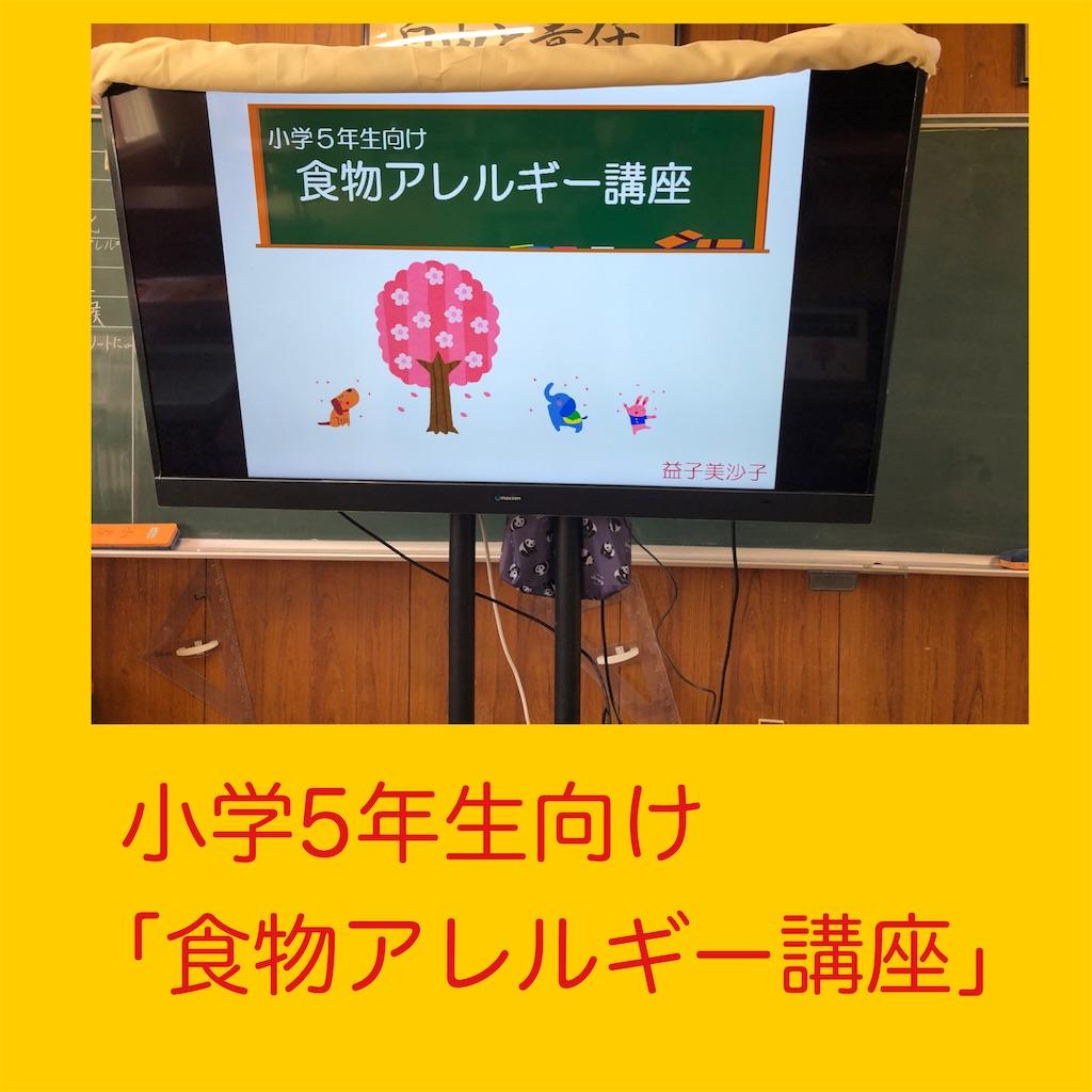 f:id:allergy_nagasakikko:20210427094038j:image