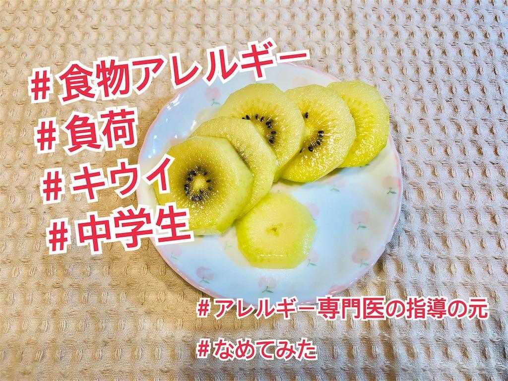 f:id:allergy_nagasakikko:20210606123747j:image