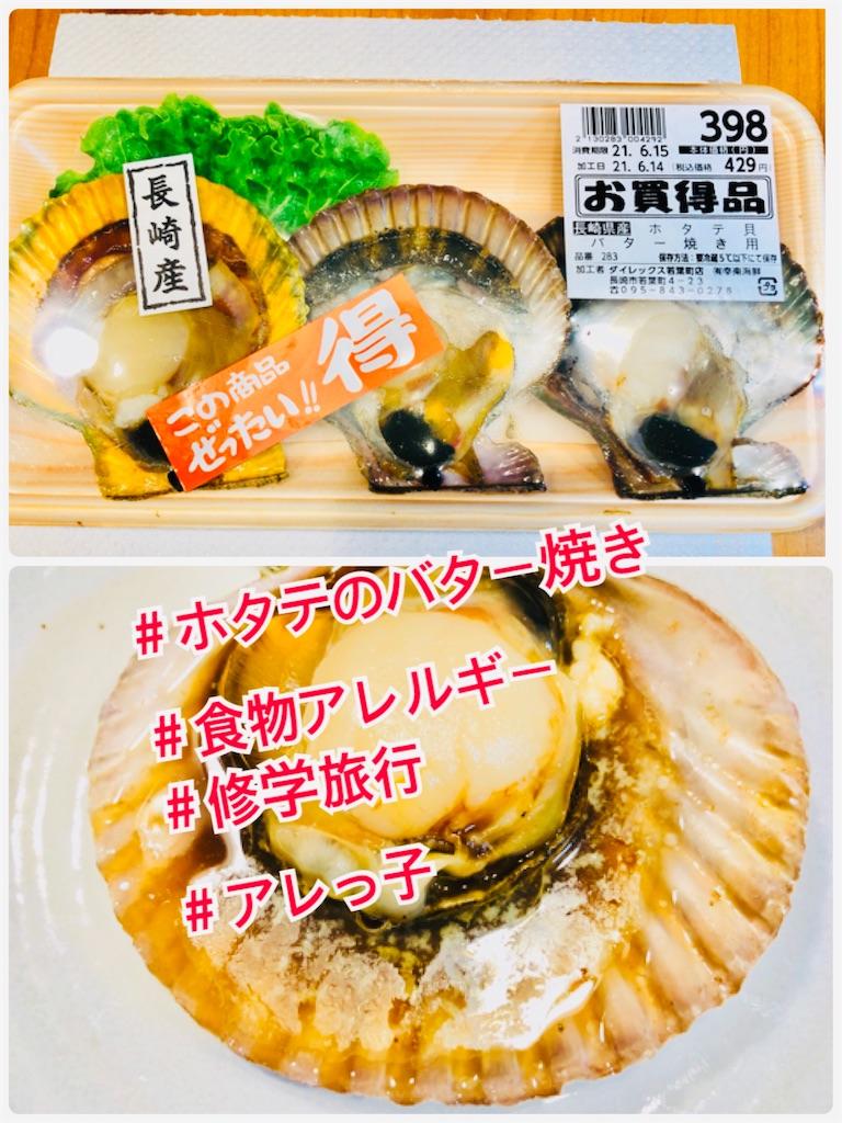 f:id:allergy_nagasakikko:20210614201257j:image