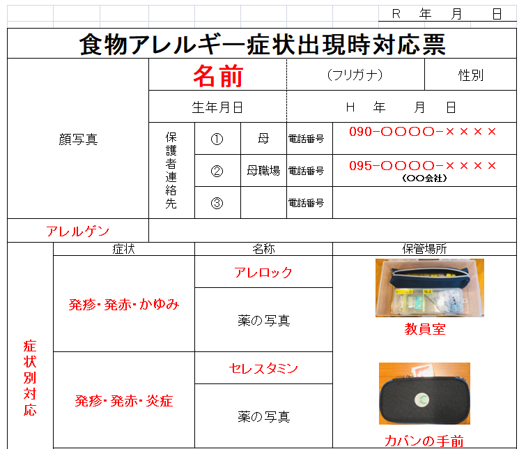 f:id:allergy_nagasakikko:20210615202023p:plain