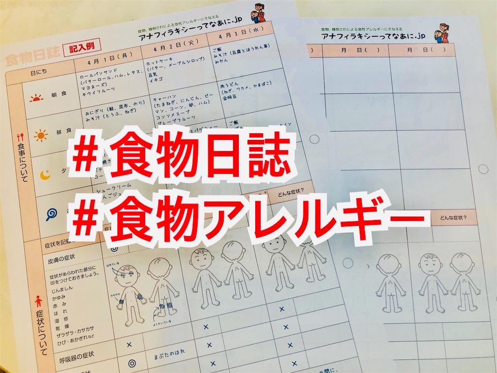 f:id:allergy_nagasakikko:20210620212824j:image