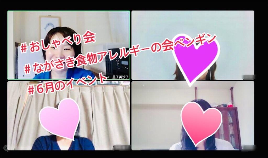 f:id:allergy_nagasakikko:20210627183132j:image