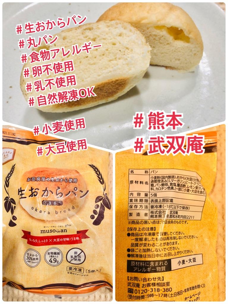 f:id:allergy_nagasakikko:20210716200742j:image