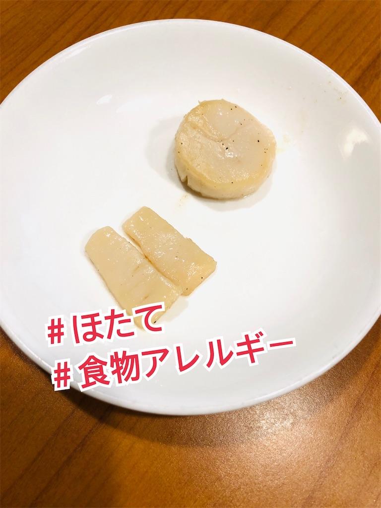 f:id:allergy_nagasakikko:20210719205631j:image