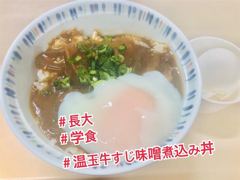 f:id:allergy_nagasakikko:20210721202113j:image
