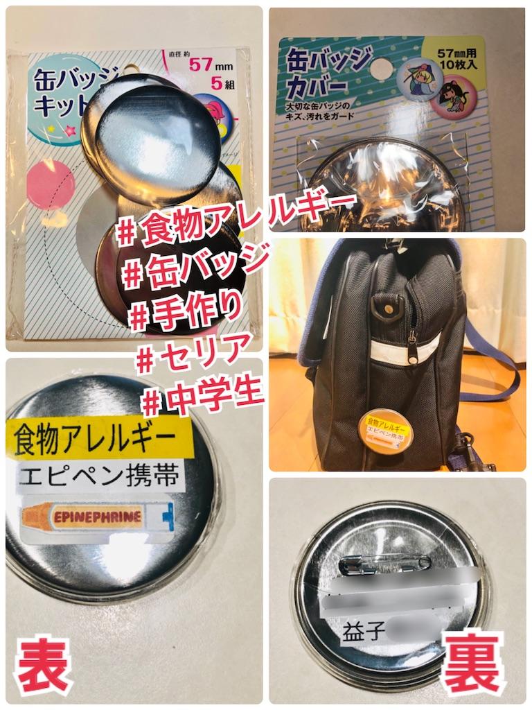 f:id:allergy_nagasakikko:20210807105340j:image