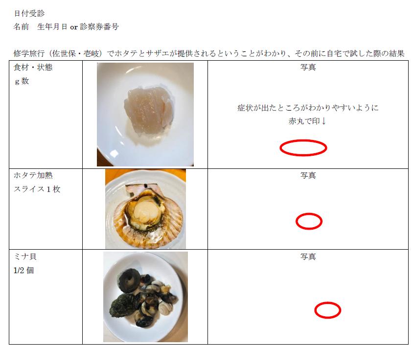 f:id:allergy_nagasakikko:20210817124747p:plain