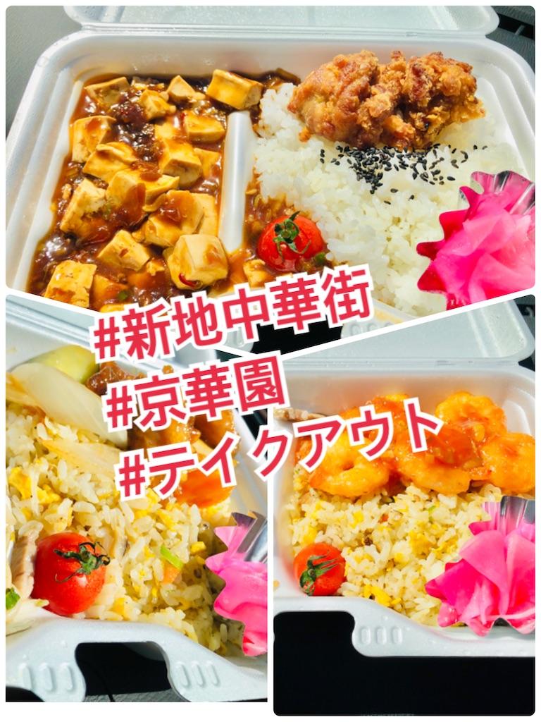 f:id:allergy_nagasakikko:20211002123817j:image