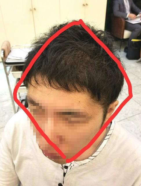 f:id:ami_tanaka:20171124002713j:image