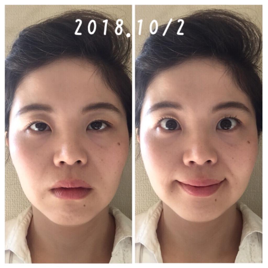 f:id:amii-kaoyoga61:20181007173307j:image