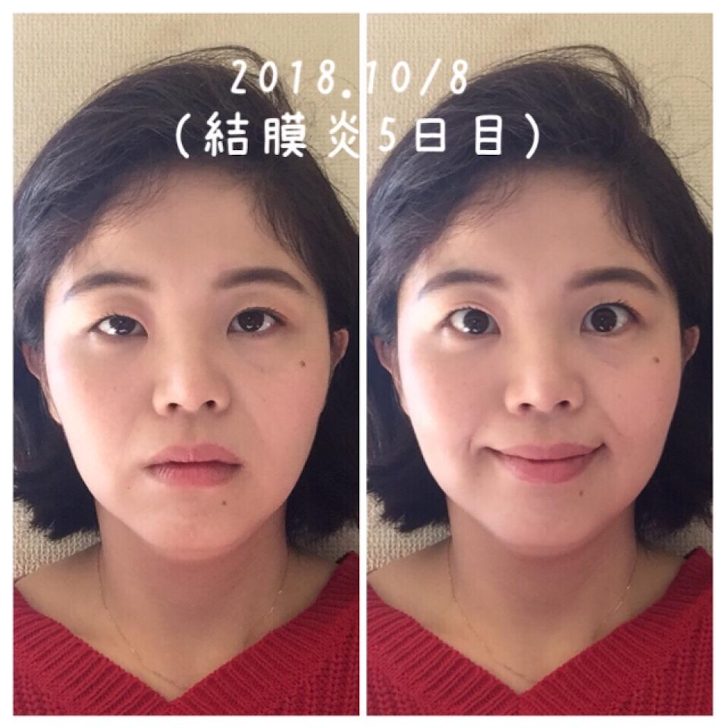 f:id:amii-kaoyoga61:20181008164934j:image