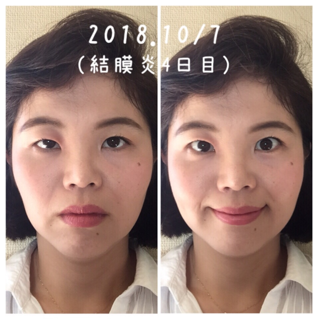 f:id:amii-kaoyoga61:20181008164953j:image