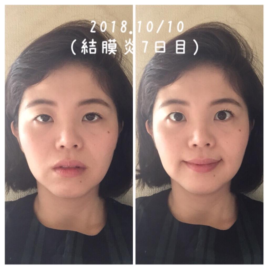 f:id:amii-kaoyoga61:20181010091505j:image