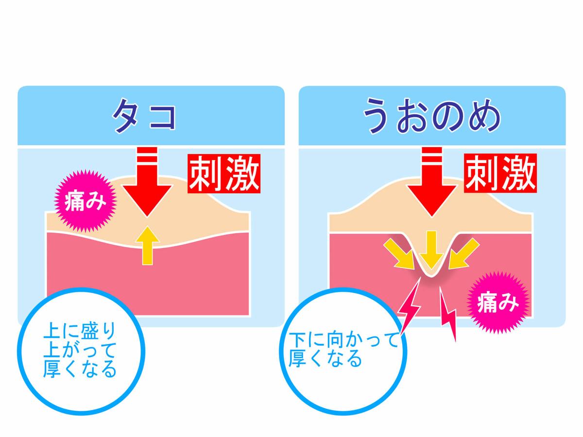 f:id:aniki-ken:20201020104756j:plain