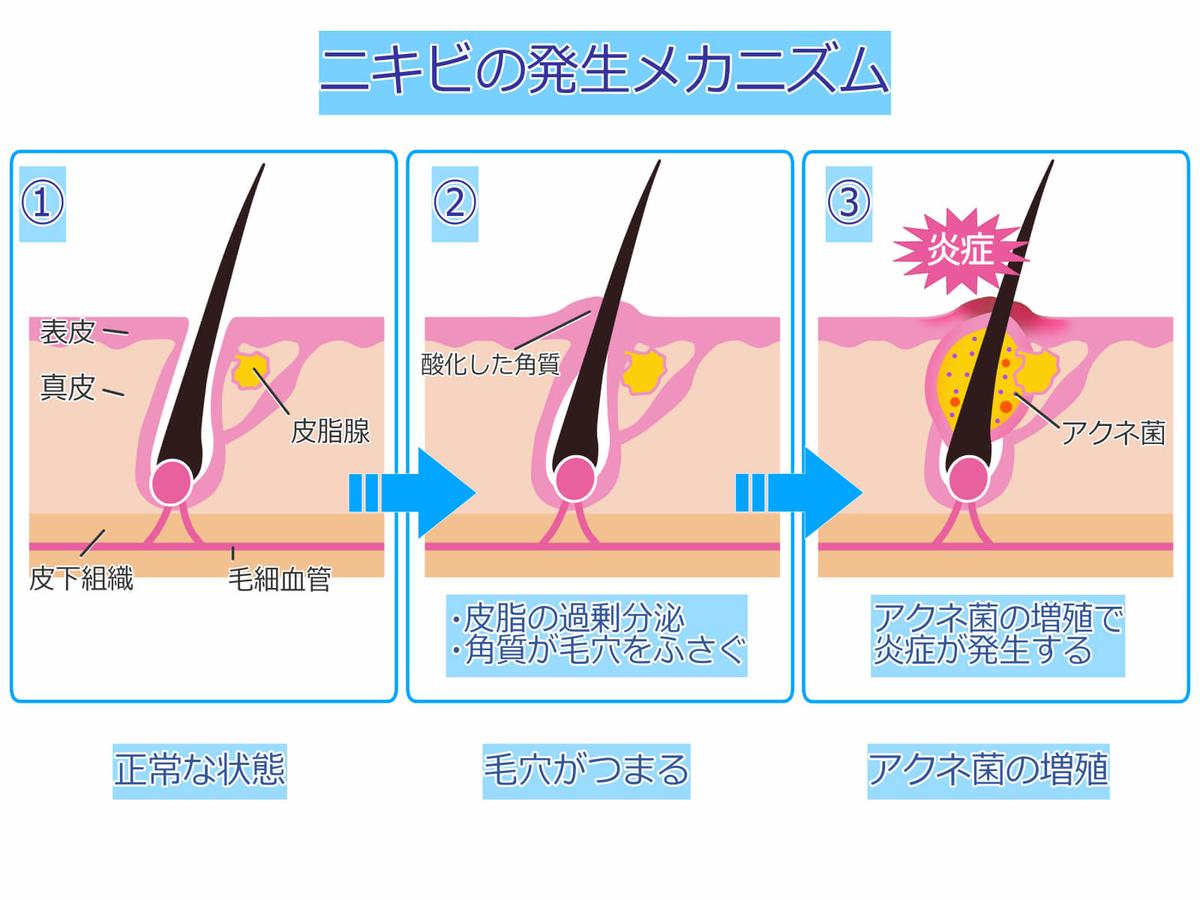 f:id:aniki-ken:20201217014725j:plain