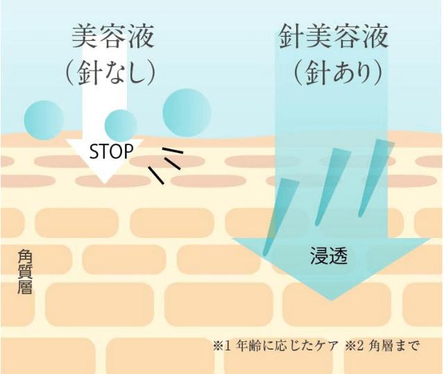 f:id:aniki-ken:20210304181637p:plain