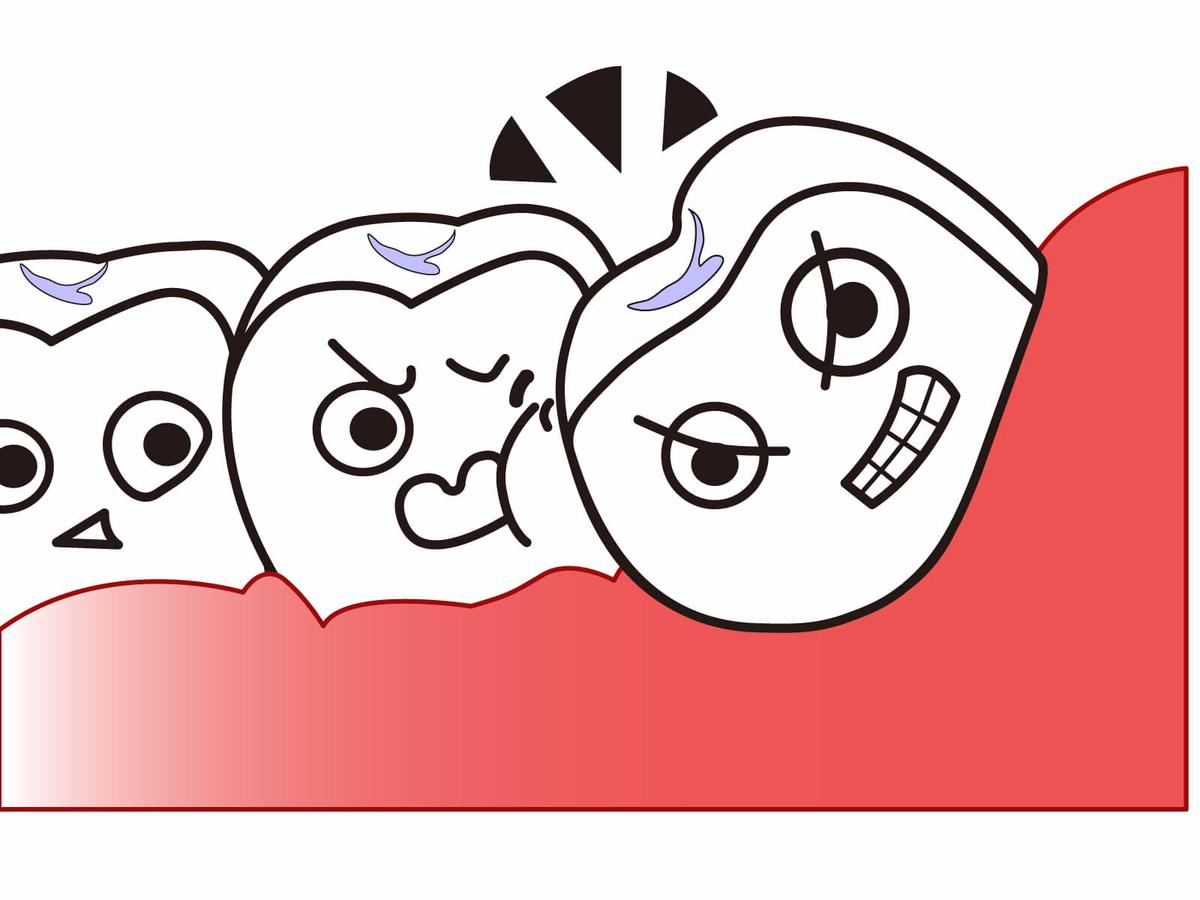 虫歯や歯周病の原因になることが多い親知らず