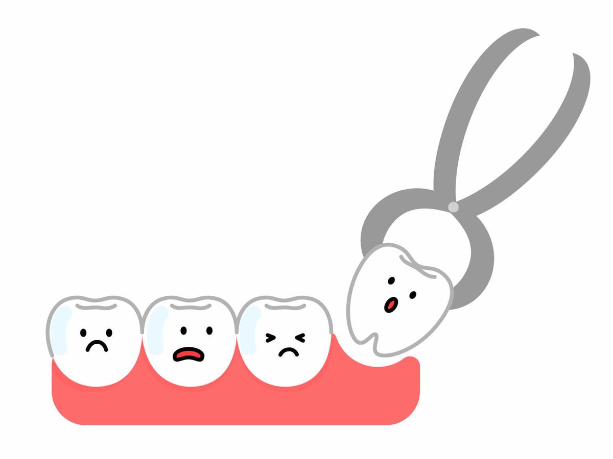 抜歯後1週間くらいで治まる