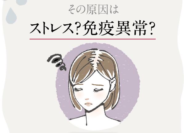 円形脱毛症の原因とは
