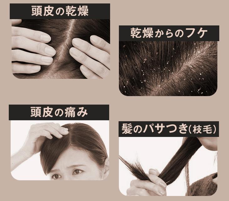 髪の悩みは様々