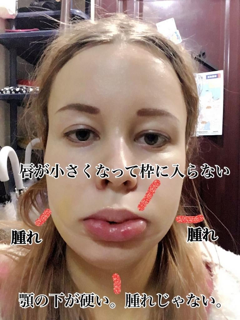 整形 失敗 顎