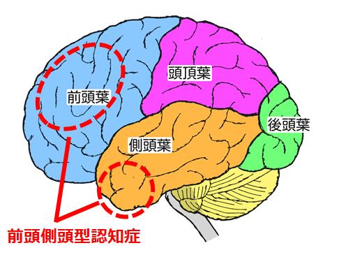 前頭側頭型認知症