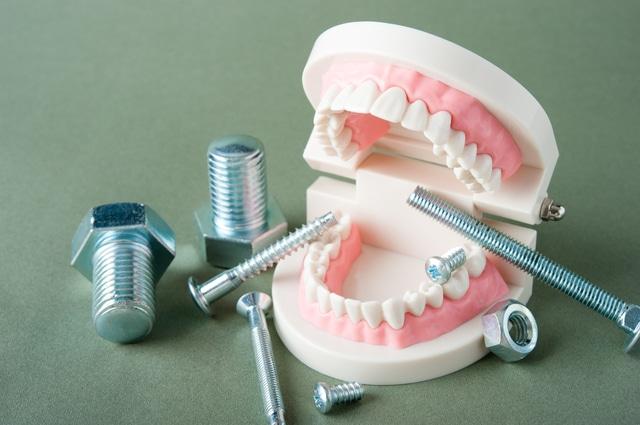 入れ歯とは 種類と介護者が知っておきたいポイントについて