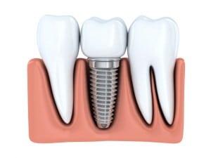 Human Dental implant