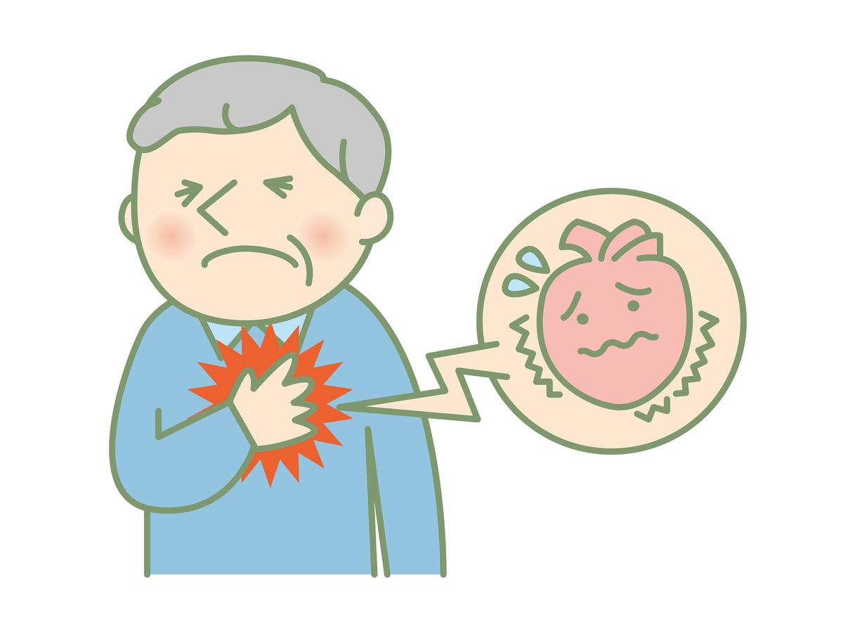 心疾患のための心臓リハビリ