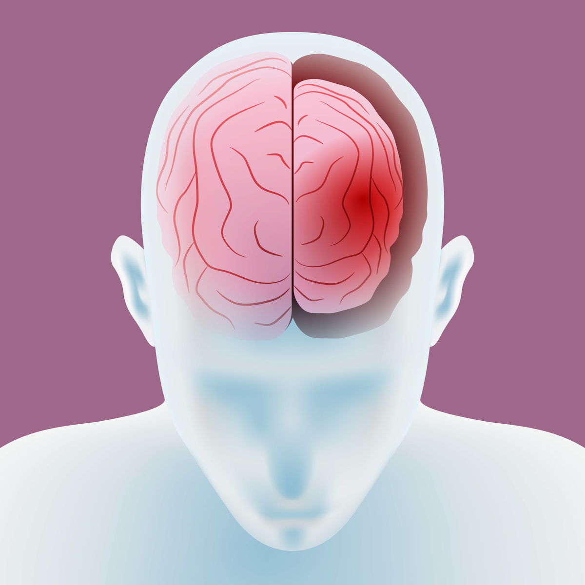 アルコールと認知症の関係性