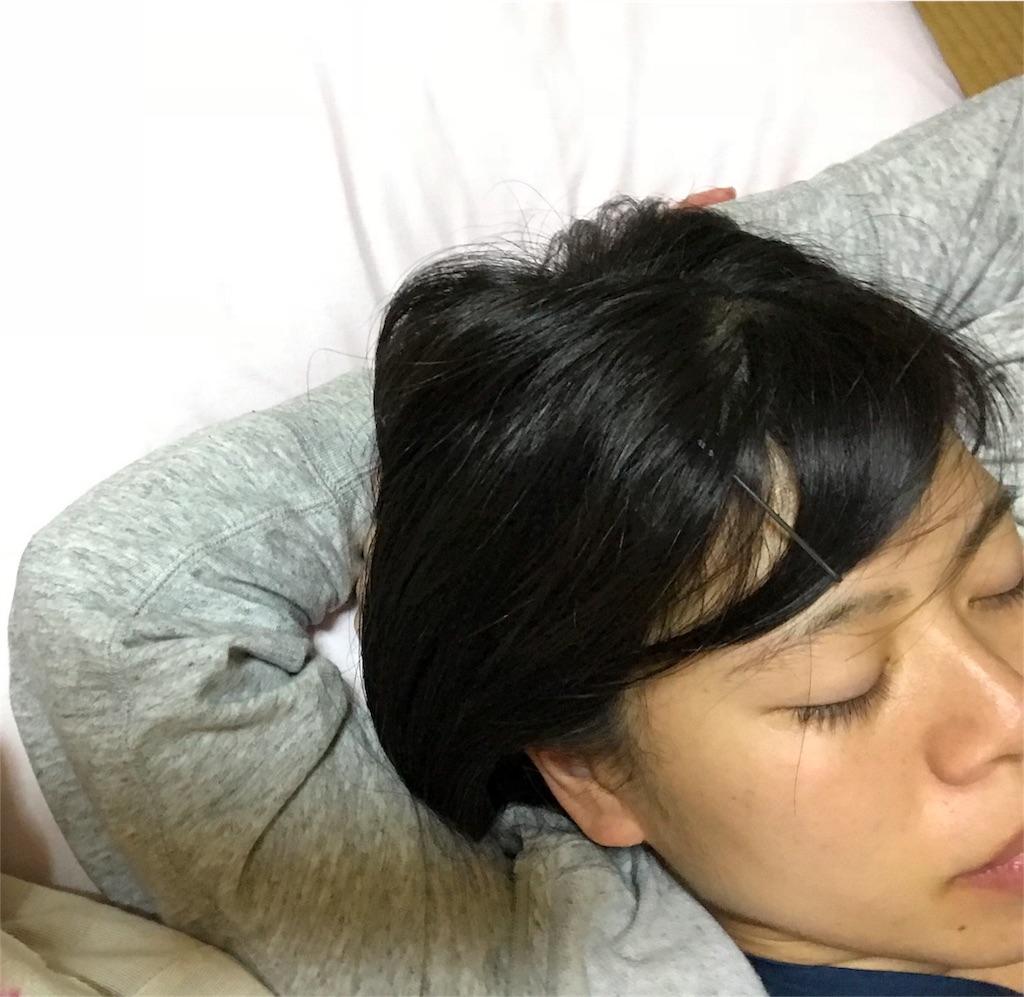 f:id:anzuruyori-umugayasushi421:20181004204416j:image