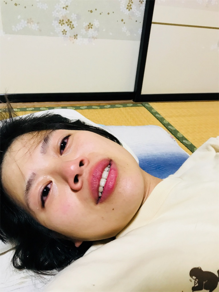 f:id:anzuruyori-umugayasushi421:20181206153218j:image