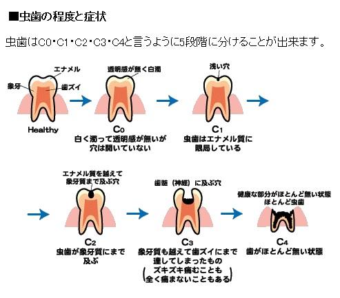 >虫歯のレベル