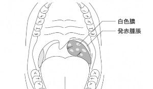 扁桃腺周囲膿症(扁桃炎)