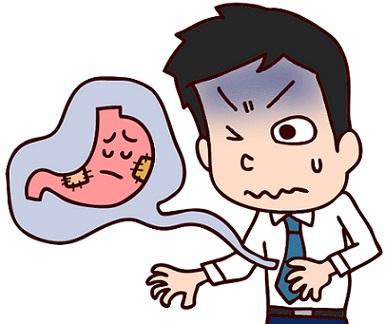 逆流性食道炎と噴門ヘルニア胃の不快な症状の男性
