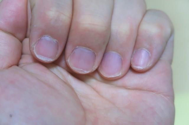 短く綺麗になった爪の様子