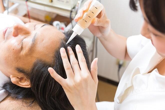薄毛の発毛効果・抜け毛の発毛効果施術