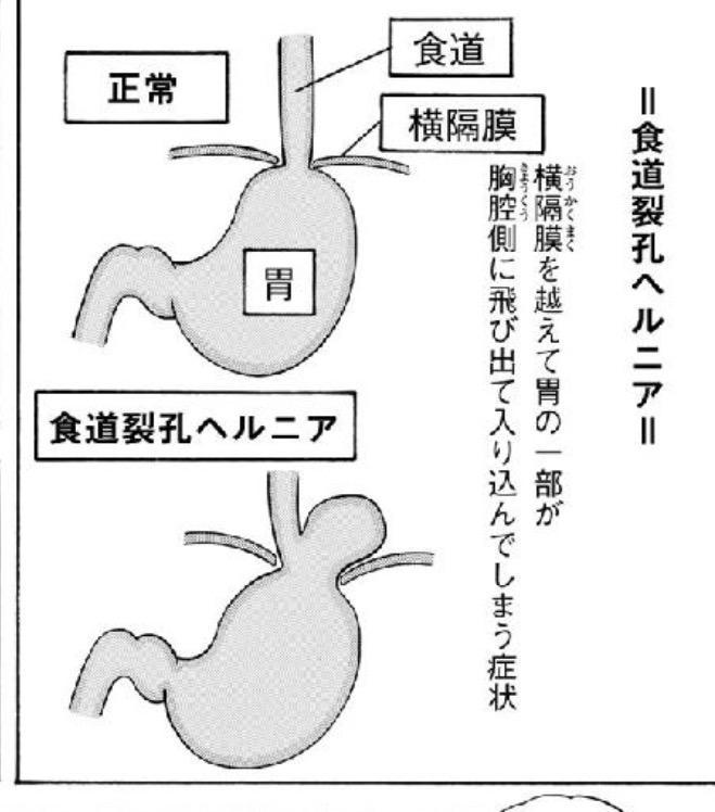 トレ 筋 裂孔 食道 ヘルニア