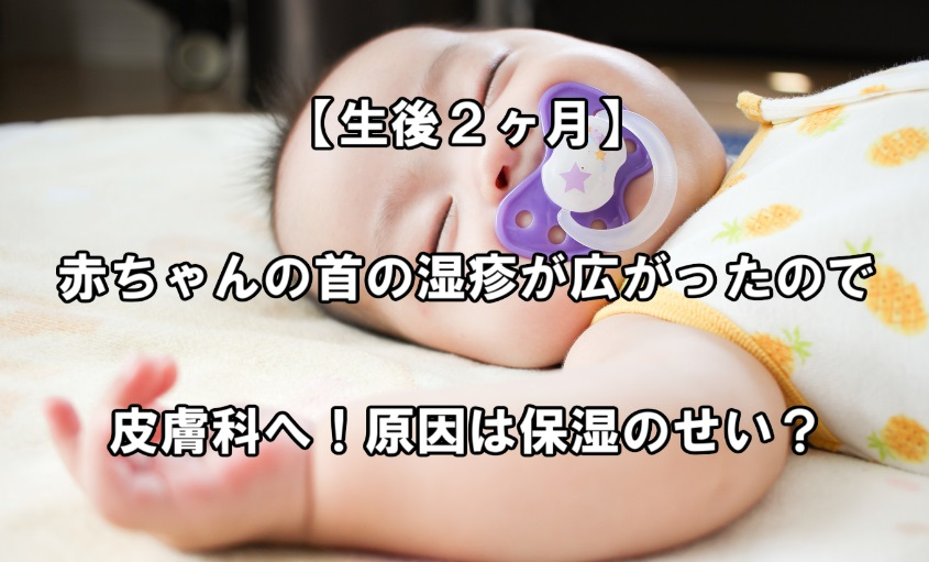 f:id:asamushi:20181203173000j:plain
