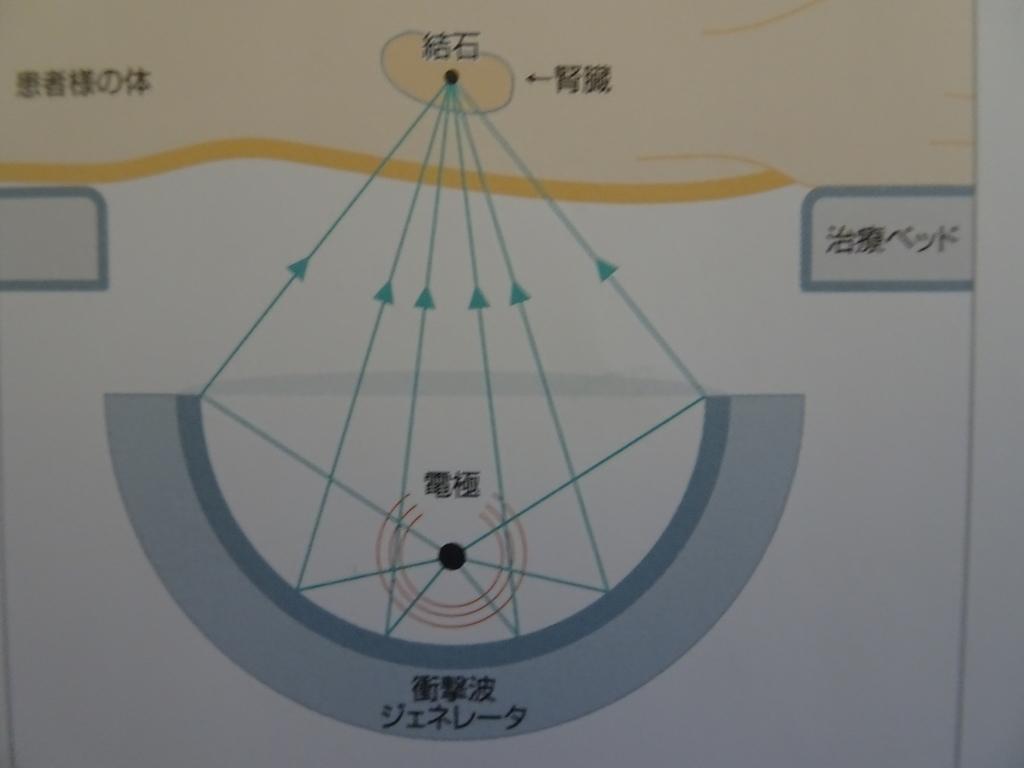 f:id:ashinichi:20190203162208j:plain